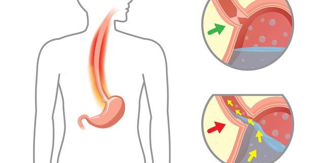 Qastroezofageal reflüks xəstəliyi