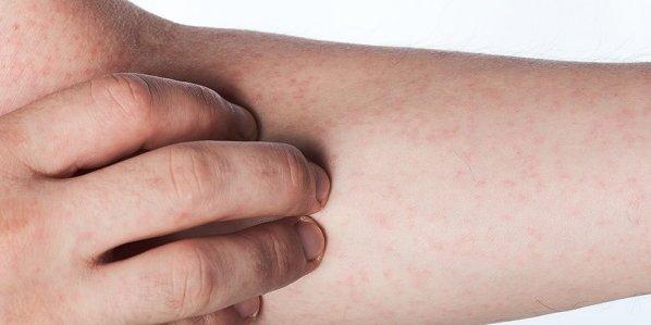 Allergik vaskulit