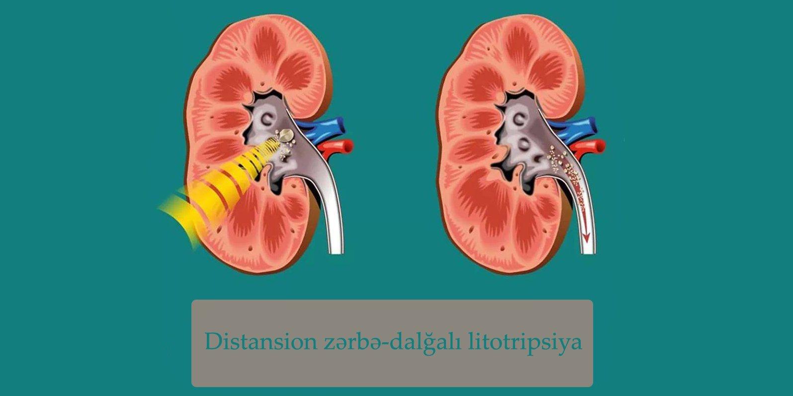 Distansion zərbə-dalğalı litotripsiya