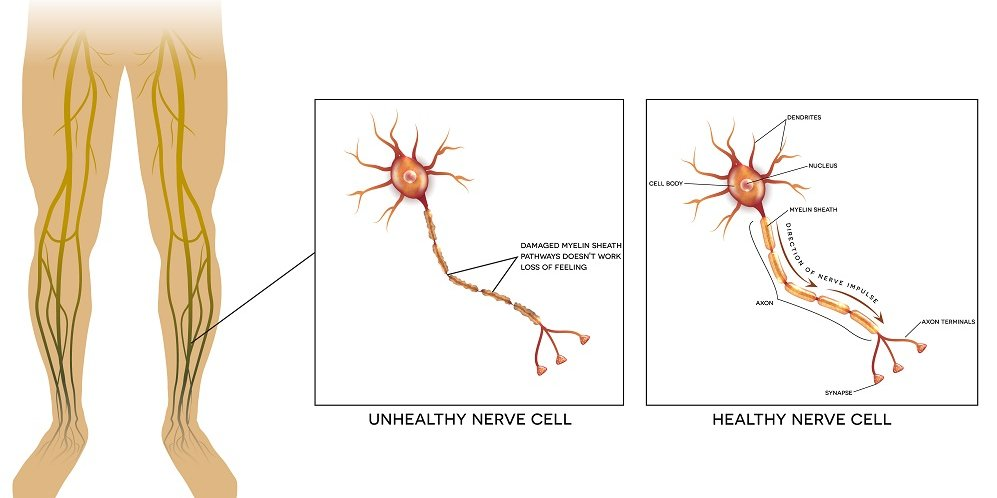 Neyropatiya nədir və səbəbləri