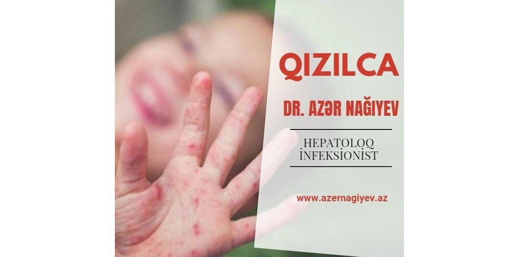 Qızılca - virus xəstəliyi