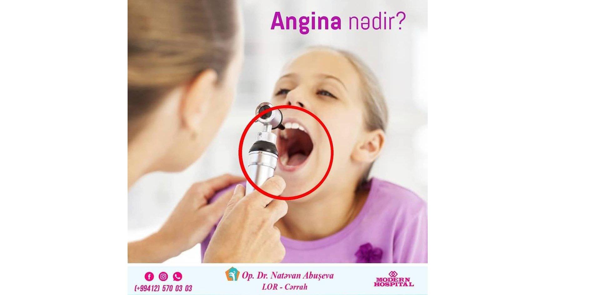 Angina nədir?