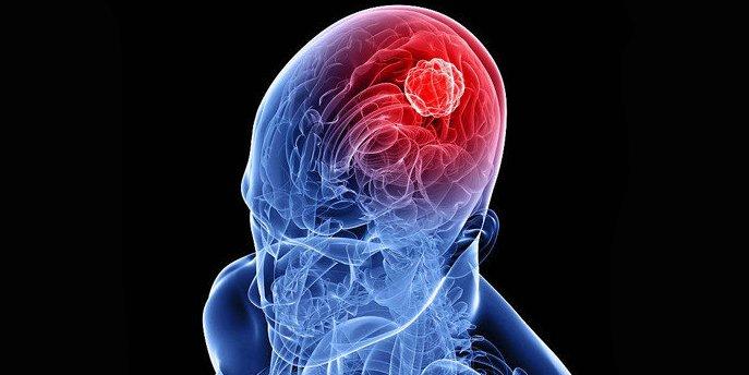 Beynin müxtəlif şiş xəstəlikləri