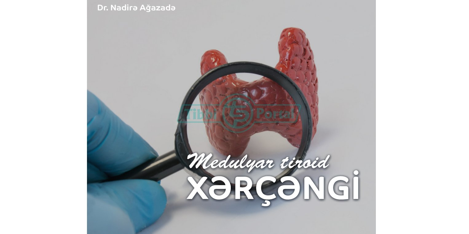 Medulyar tiroid xərçəngi, medulyar tiroid xercengi, xerceng xesteliyi
