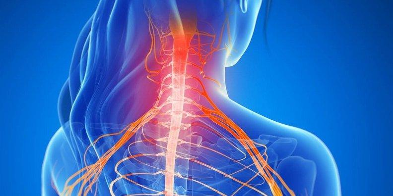 Boyun osteoxondrozu,yoxsa onurğa arteriya sindromu