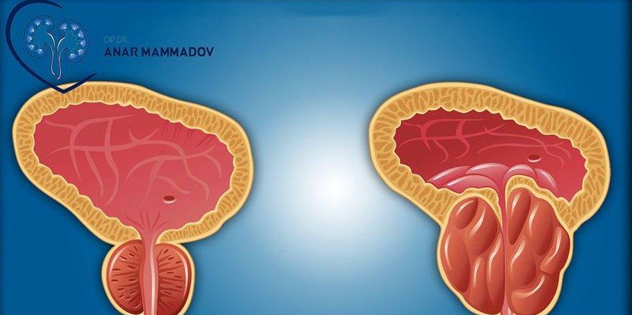 Заразна ли болезнь простатит лечение простатита в домашних условиях лекарствами
