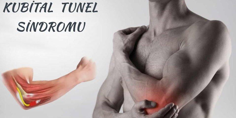 Kubital tunel sindromu