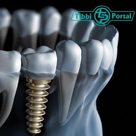 İmplant diş necə düzəldilir?