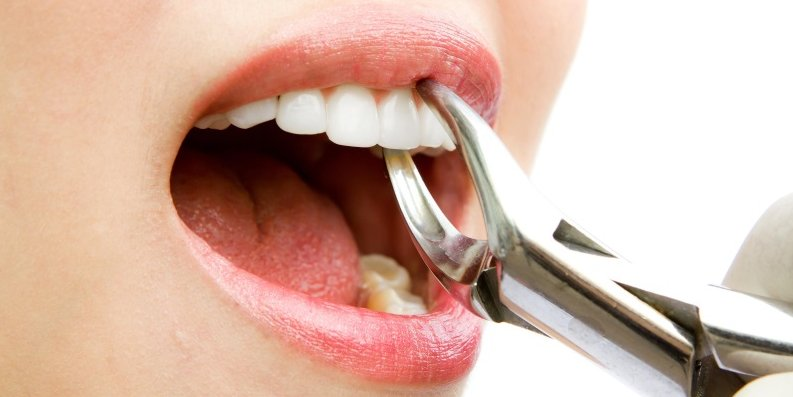 Diş çıxarıldıqdan sonra nə etməli?