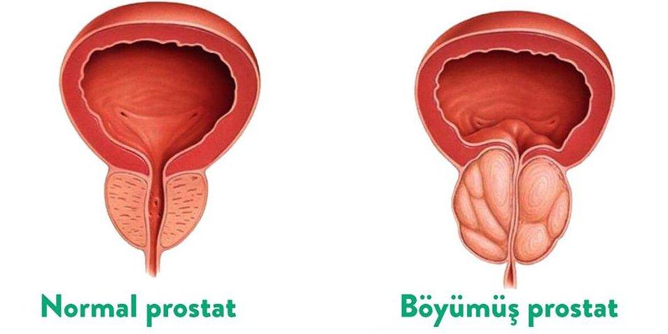 Prostat vəzinin adenoması