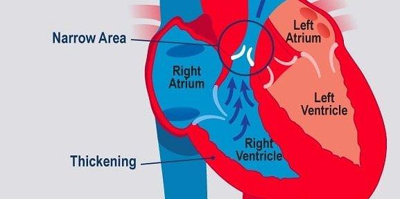 Pulmonar Stenoz, ağciyər damarında darlıq